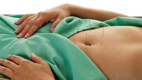 A patient undergoes acupuncture of the belly