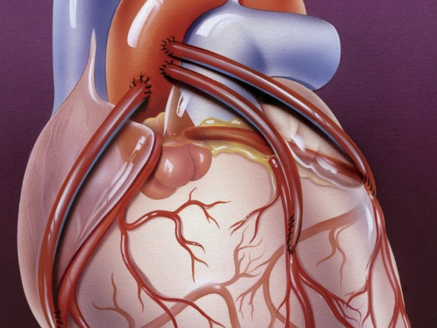 Three bypass arteries connect the aorta to smaller coronary arteries on the heart's outer surface.