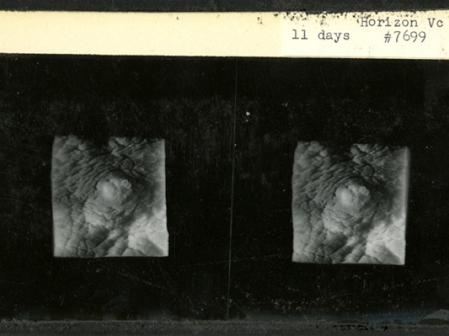 Rock and his Harvard Medical School colleague Arthur Hertig filled in gaps in knowledge about human reproduction by documenting the first 17 days after fertilization, using 34 fertilized ova removed from patients who were undergoing hysterectomies and consented to inclusion in this research. This stereopticon card from 1938 shows an embryo 11 days after fertilization.