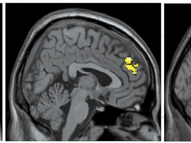 Healthy brain food snacks image 1