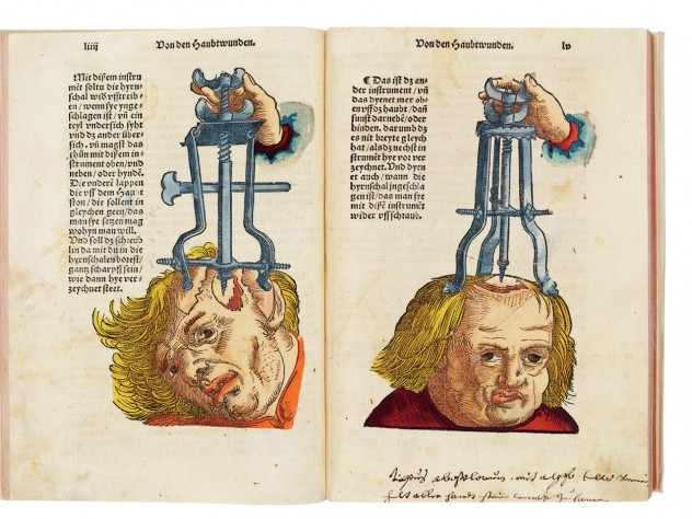 <i>Instruments for Use in Cranial Surgery,</i> from Hans von Gersdorff's <i>Feldtbüch der Wundartzney</i> (1517), is both a <i>description</i> of how to remove shards of skull from the brain and a <i>tool</i> to persuade readers that such surgeries were possible.