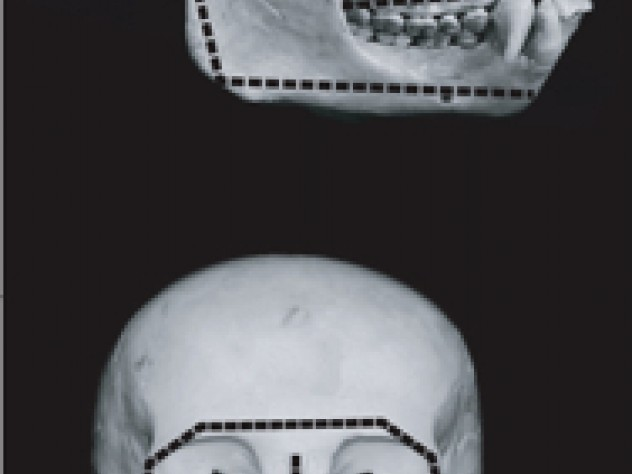Front and side views of adult chimpanzee and human skulls highlight differences in patterns of facial growth. In both species, faces grow wider and taller, but chimp faces grow out and up to become more projecting, while the smaller human face remains tucked under the cranium.