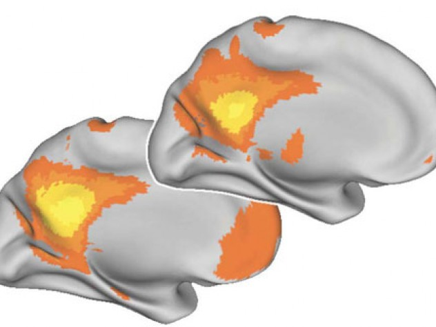 The younger brain, below, shows more synchronized activity than the older brain, above.